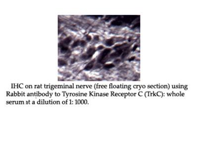 Anti-Tyrosine Kinase Receptor C (TrkC) Antibody