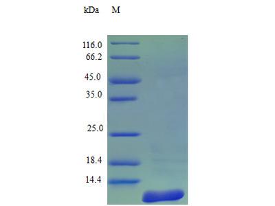 Recombinant Human C-C motif chemokine 7 protein (CCL7) (Active)