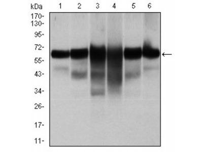 CK5 Antibody