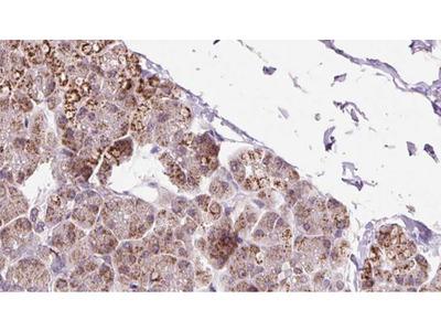 ETFDH Antibody
