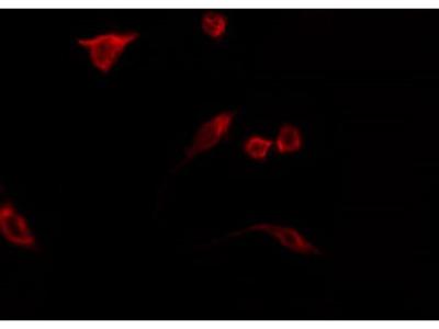 N4BP2L2 Antibody