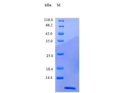 Recombinant Human C-C motif chemokine 24 protein (CCL24) (Active)