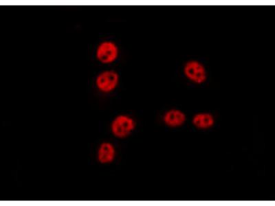TSEN54 Antibody