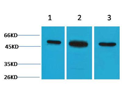 Anti-beta-II Tubulin Rabbit pAb