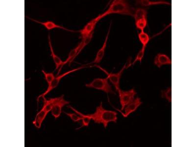 ABHD6 Antibody