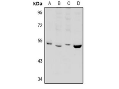 Anti-PPP2R2B Antibody