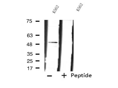 LPCAT2 Antibody