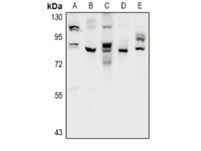 Anti-CSGLCAT Antibody
