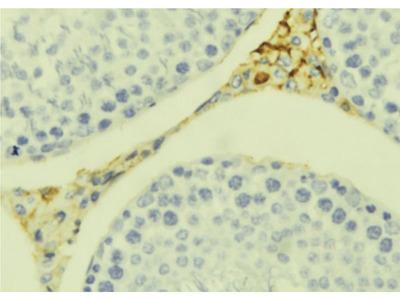 CCL20 Antibody