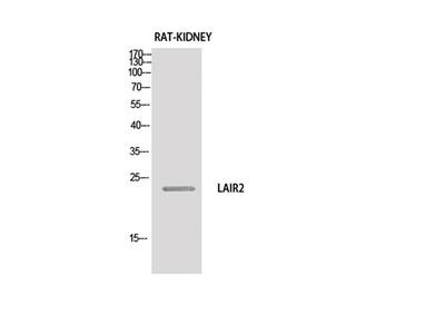 CD306 Polyclonal Antibody