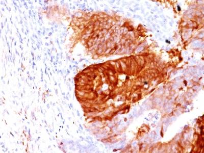 ALDH1A1 (Aldehyde Dehydrogenase 1A1) Antibody