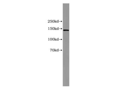 CP Monoclonal Antibody