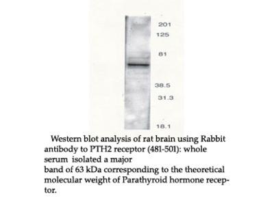 Anti-PTH2 Receptor (481-501) Antibody