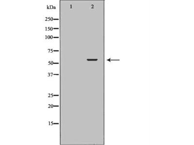 P4HB Antibody