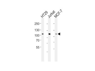 Anti-TPX2 Mouse mAb