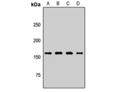 Anti-PLB Antibody
