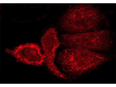 GRM5 Antibody