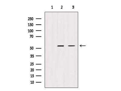 TRIM44 Antibody