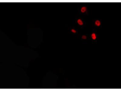 CKS1 Antibody