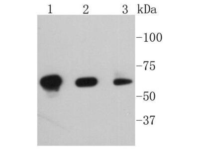 Phospho-PAK1(S144)+PAK2(S141)+PAK3(S139) Recombinant Rabbit Monoclonal Antibody [SU03-70] (ET1608-58)