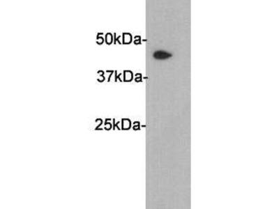 PAI-3 Rabbit Polyclonal Antibody (0812-5)