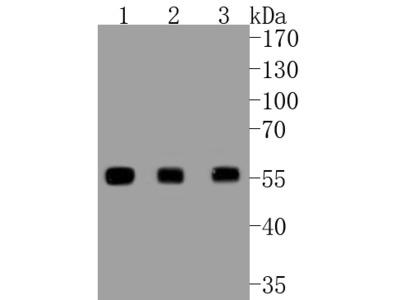 PTEN Recombinant Rabbit Monoclonal Antibody [SJ19-03] (ET1606-43)