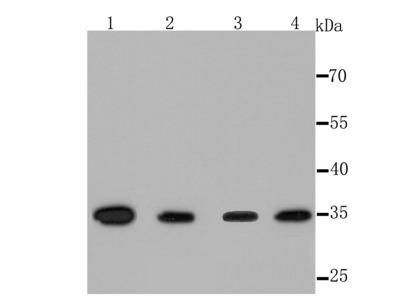 Thymidylate Synthase Recombinant Rabbit Monoclonal Antibody [JM33-20] (ET1705-24)