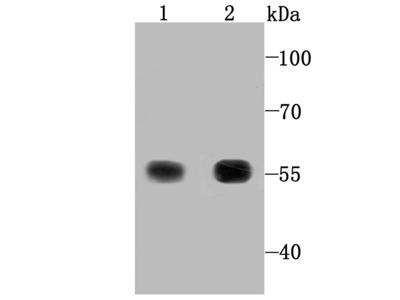 TXNRD1 Recombinant Rabbit Monoclonal Antibody [JA11-32] (ET1704-81)