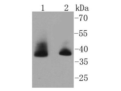 Aurora B Recombinant Rabbit Monoclonal Antibody [SC55-08] (ET1610-25)