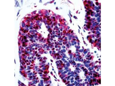 Anti-CDKN2A / p14ARF antibody