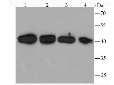 TXNIP Antibody (JM60-35)