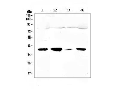 Anti-uPA Receptor/PLAUR Antibody Picoband