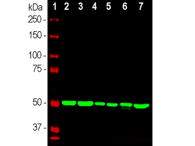 Anti- Beta-tubulin Monoclonal Antibody
