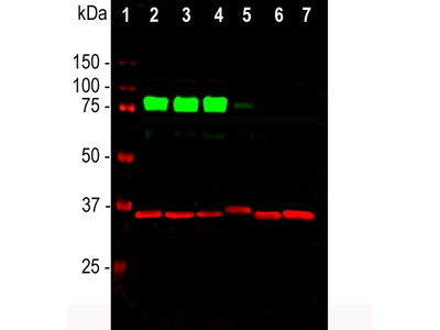 Anti-MARCKS (Myristoylated Alanine Rich C Kinase Substrate) Antibody