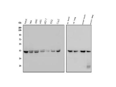 Anti-GNAQ Picoband Antibody (monoclonal, 13H4)