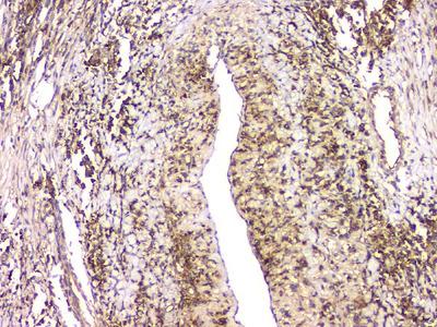 Anti-HECTD3 Picoband Antibody