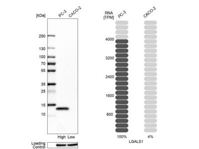Anti-LGALS1 Antibody