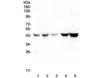 Alpha 1 microglobulin Antibody / AMBP