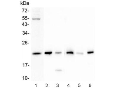 Doppel Antibody / PRND