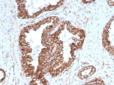 TMEPAI Antibody / PMEPA1 (Mouse Monoclonal)