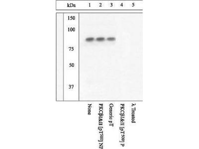 Anti-PKC beta (phospho Thr500) antibody