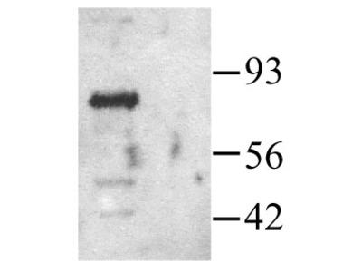 Anti-PAK1 antibody