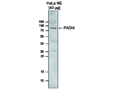 PADI4 Polyclonal Antibody