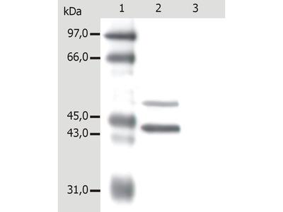 Anti-Cytokeratin 5 + 18 antibody [C-50]
