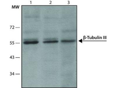 Anti-beta Tubulin 3/ Tuj1 antibody [SDL.3D10]