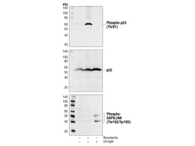 Phospho-p53 (Thr81) Antibody