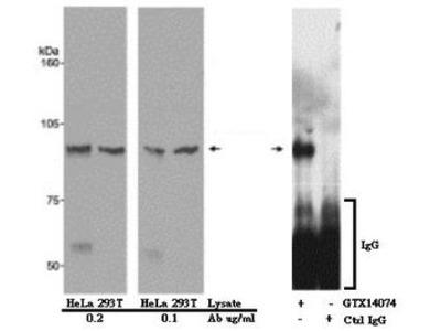 Anti-ATRIP antibody