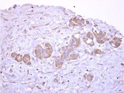 Anti-V-ATPase D antibody