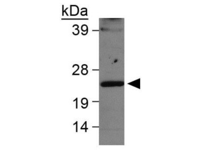 Anti-LMO2 antibody