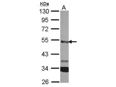 Anti-CPA3 antibody [N3C3]